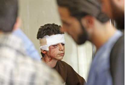 Syrian boy receives treatment after air strike in Aleppo