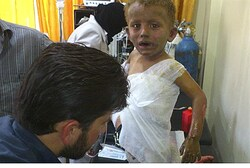 Toddler wounded in gov't shelling of Homs