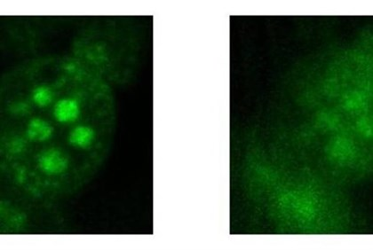 Microscope images of cells (r)with and (l) without temporal focusing