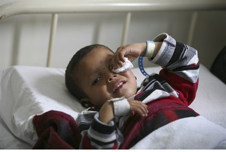 Wounded Syrian refugee child in Jordanian hos